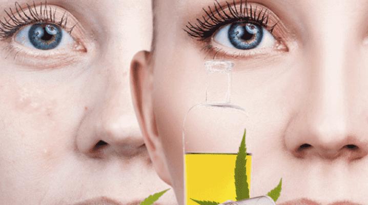 El acné puede ser tratado con CBD o cannabis medicinal