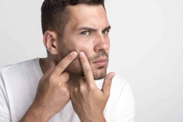 El acné puede resultar molesto y el cannabis medicinal, con su potente componente CBD puede ayudar a tratrlo