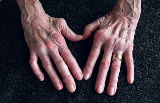 cannabidiol para ayudar en enfermedades de articulaciones