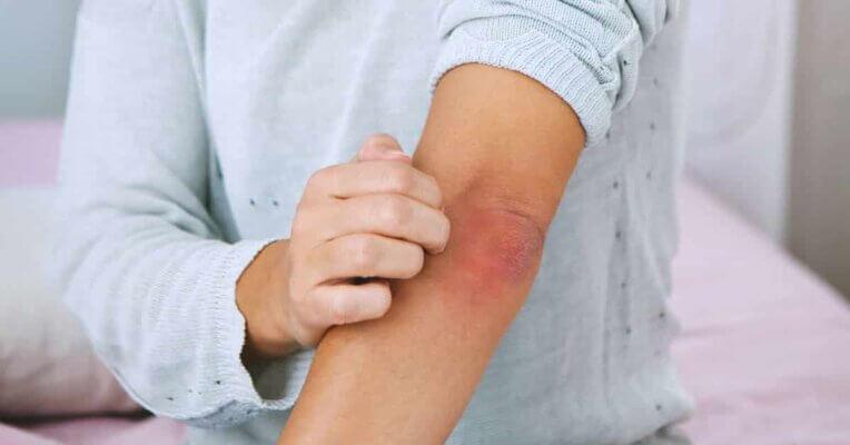 cbd para aliviar el dolor de la psoriasis